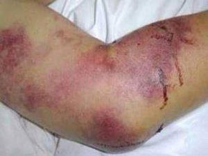 بیماری ویروسی تب خونریزی دهنده کریمه کنگو