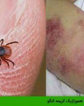 بیماری تب هموراژیک کریمه کنگو