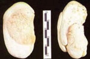 شکل ۱- بذر انبه چند جنینی (سمت راست) و تک جنینی (سمت چپ)